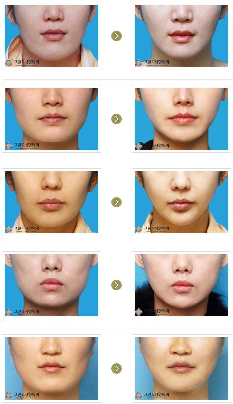韓国顔面輪郭
